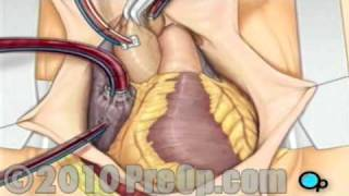 Coronary Artery Bypass (CABG) Surgery