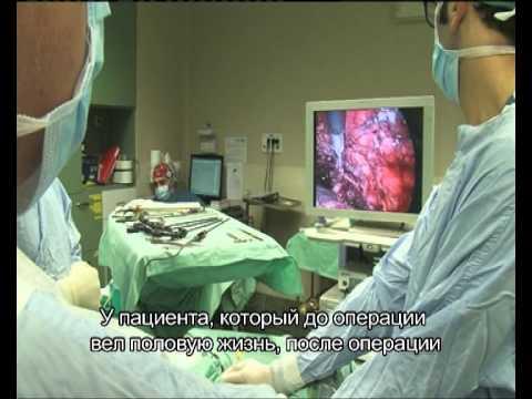 Лапароскопическое удаление простаты в Израиле