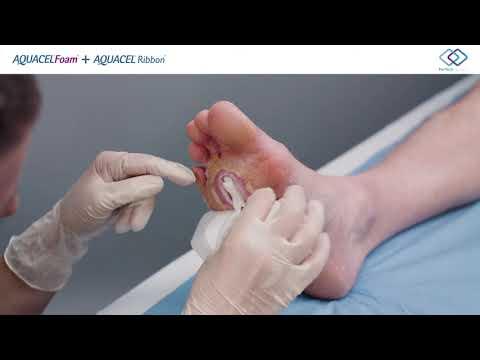 Convatec AQUACEL Foam Aanbrengen Diabetische voet wond