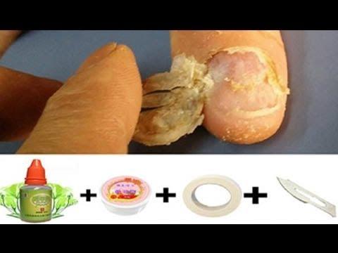 Sanar el hongo de las uñas por el peróxido
