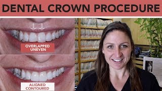 Dental Crowns to Fix Front Teeth