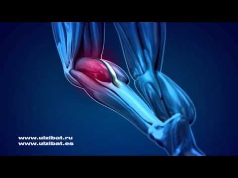 Schmerzen in der Leiste von hinten