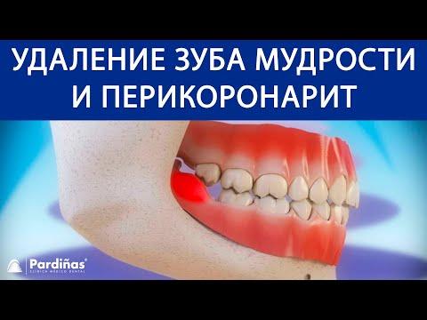 Удаление зуба мудрости и перикоронарит ©