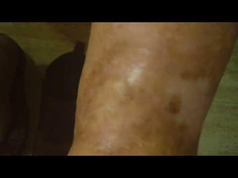 Varicoză edema picioare unice sarcina