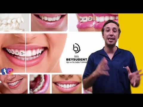 Diş Teli Tedavi Çeşitleri