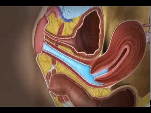 Гвоздика от простатита дозы