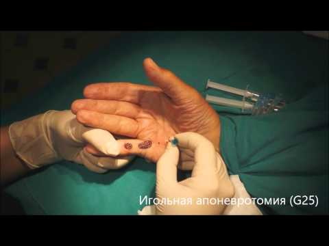Безоперационное лечение контрактуры Дюпюитрена. Needle aponeurotomy DUPUYTREN.RU