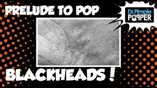 Prelude to Pop: Getting Some Blackhead Satisfaction!