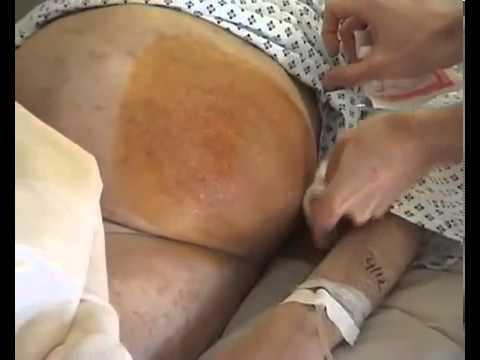 Brust weh tut und gibt den Arm und Hals