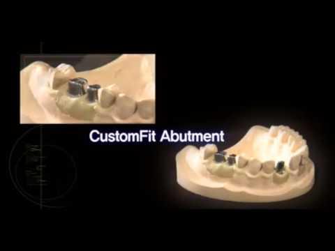 Корейские импланты зубов премиум класса компании OSSTEM Implant