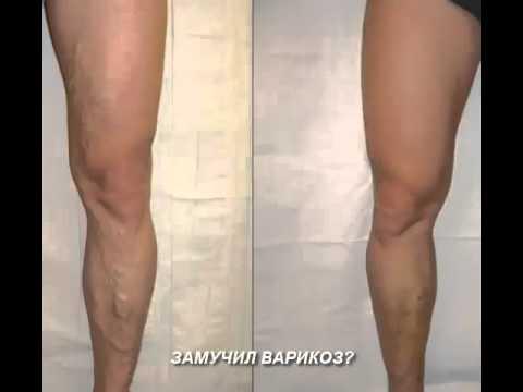 варикоз чернеют ноги