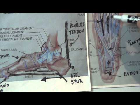 What is a Heel Spur - Plantar Fasciitis