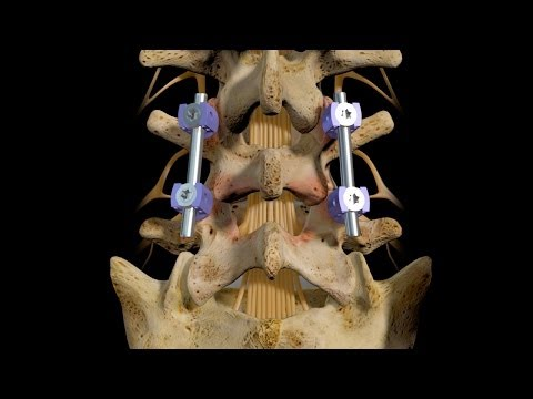 Ellenbogen Knochen