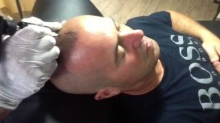 Scalp Micro Pigmentation in Thailand
