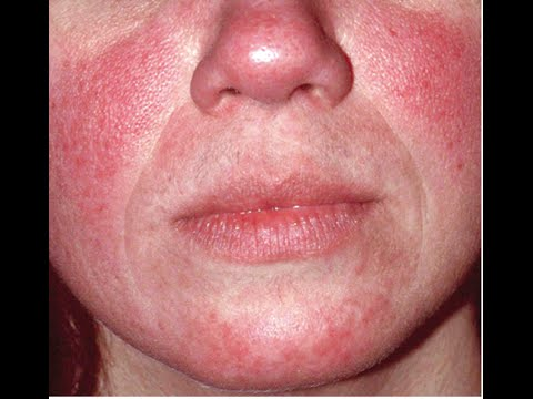 Video WHAT CAUSES ROSACEA AND HOW TO TREAT #TMITUESDAYS