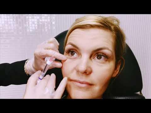 Dermal Filler Under Eyes ~ Tear Trough Restoration - Asia