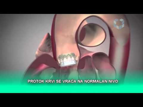 Hipertenzinės krizės laikotarpiai