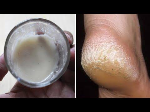 Artroza oaselor articulației șoldului
