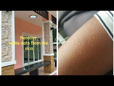 În timpul sarcinii trata varicoza