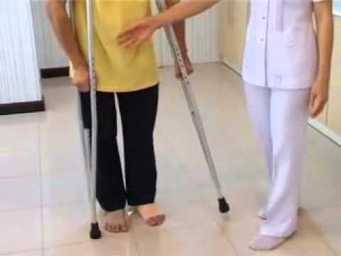Valgus เท้า ICD