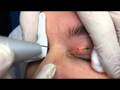 La médecine les oedèmes sur les yeux