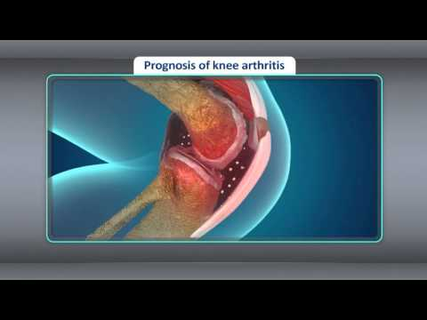 Video [Treatment] Treatment for Osteoarthritis of the Knee