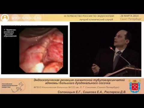 Лечение простатита ромашкой