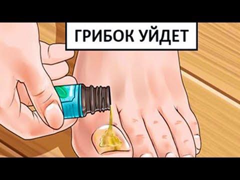 Gribki auf den Nägeln in den Bildern