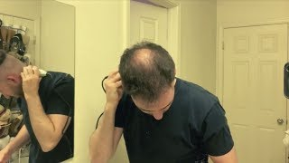 BALDING IN MY 20's - Shaving My Head And Embracing Going Bald (LIVE)
