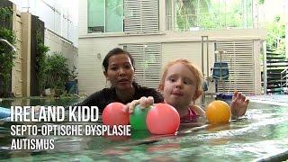 Ireland, Septo-optische Dysplasie / Autismus (ASS)...
