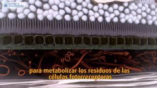 DMAE - Degenacion Macular Asociada a la Edad | Clinica Rementería - Jesus Pareja Esteban