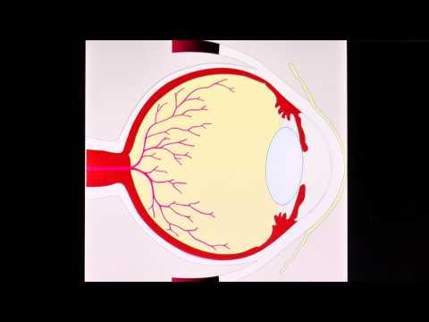 Welche Tabletten schnell senkt den Blutzucker