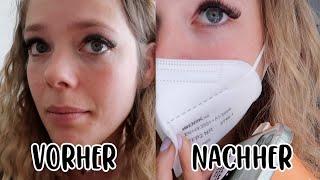 Augenringe unterspritzen - Erfahrung, Kosten, Schmerzen,...