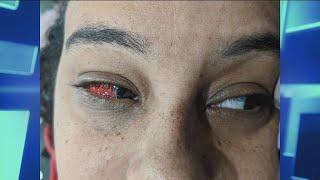 Is A Broken Blood Vessel In Your Eye Serious?
