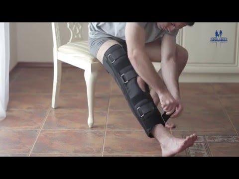 Пункция жидкости коленного сустава