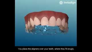 Step-by-step guide to Invisalign and how it works