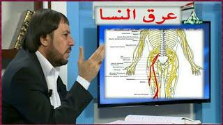 علاج عرق النسا +علاج السوفان مع الدكتور أبو علي الشيباني