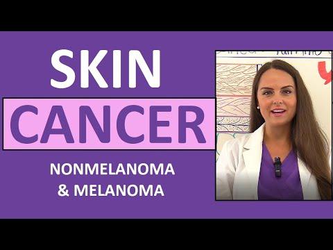 Cancer endometrial hormonioterapia