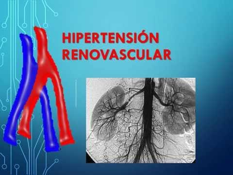 Embarazo y el tipo hipertensiva IRR