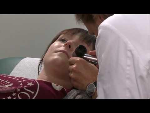 Die Laserabtragung der Pigmentflecke auf der Person nowokusnezk