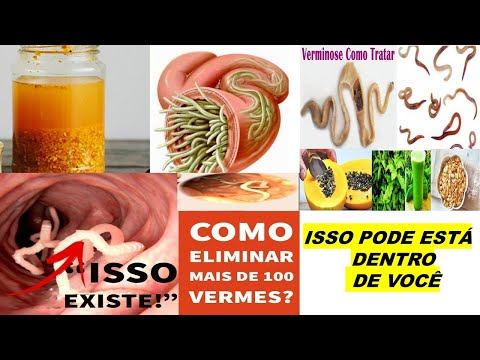 Amendoins com vinagre e diabetes