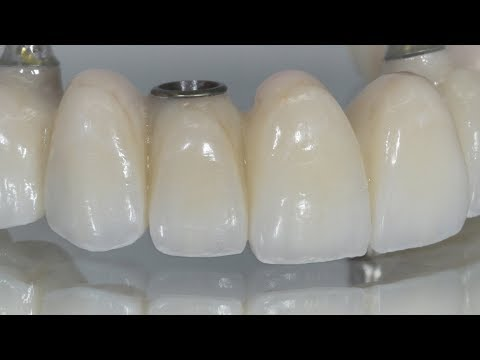 Creating Individual-Looking Teeth On A Full-Arch Bridge | Dental Lab Learning
