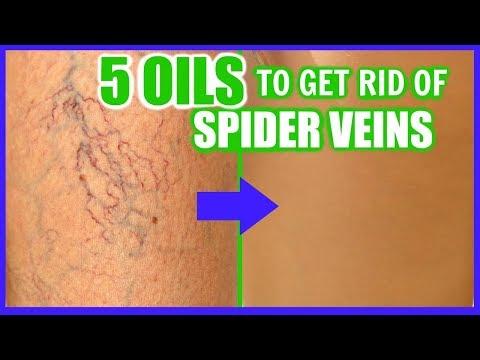 Quanto per coagulazione laser di vene varicose