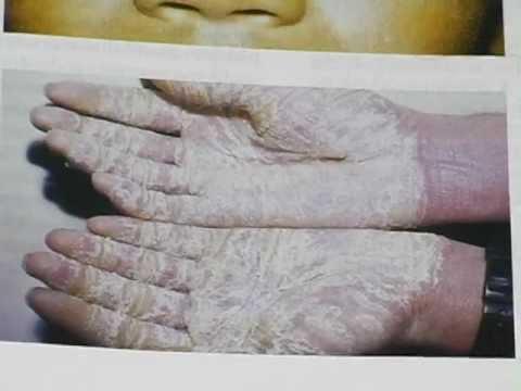 Em total sobre eczema intertriginozny