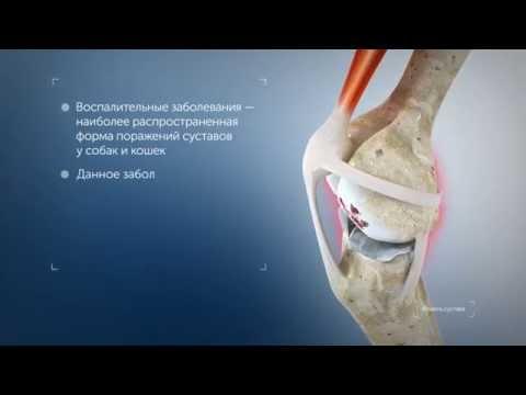 Боль в пояснице при повороте со спины на бок