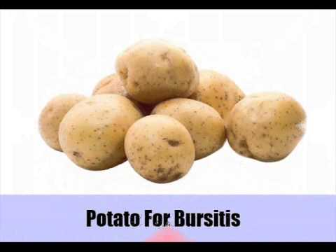 Video Suffering From Bursitis ? Try 8 Natural Cures For Bursitis
