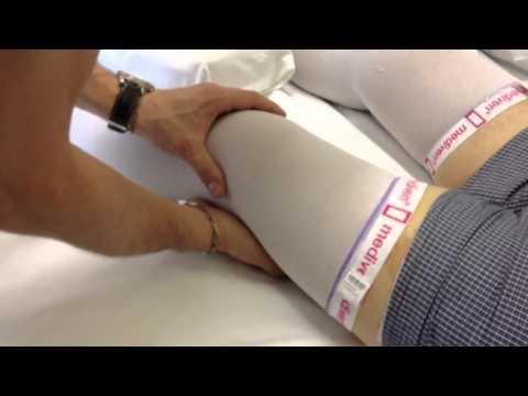 Borsite sierosa del ginocchio ICD 10