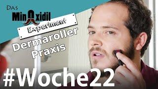 #Dermaroller Praxis | Das Minoxidil Experiment Woche22