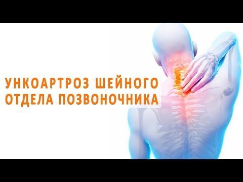 Снимок здоровых коленных суставов