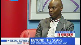 Beyond the scars: JImmy Gait describes his treatment in India